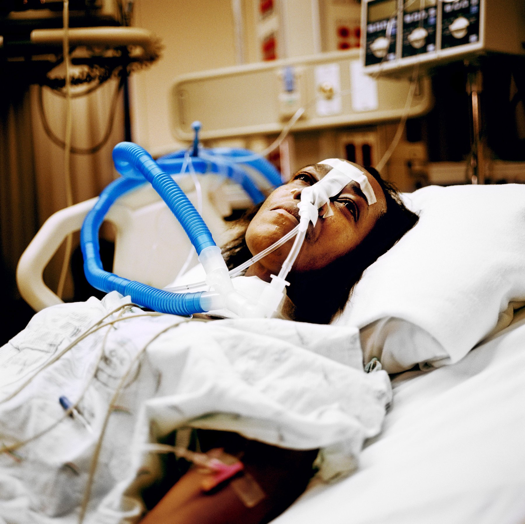 Study Finds Disparity in Critical Care Deaths Between Non-Minority and Minority Hospitals