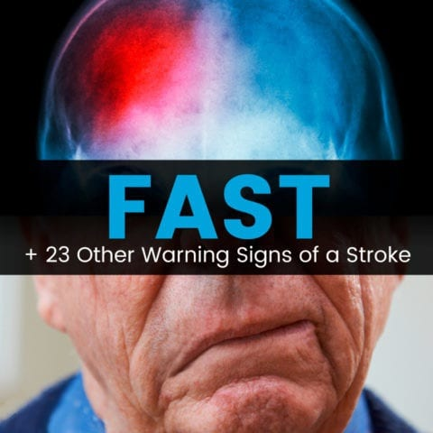 Learn FAST+ 23 Other Warning Signs of a Stroke