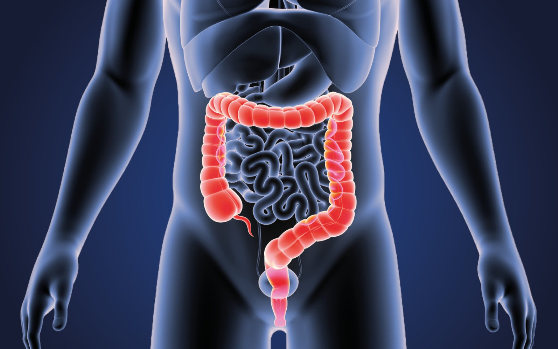 Strange Colon Discovery Explains Racial Disparities in Colorectal Cancer