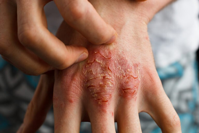 The Psoriasis Diet. Have You Tried It?