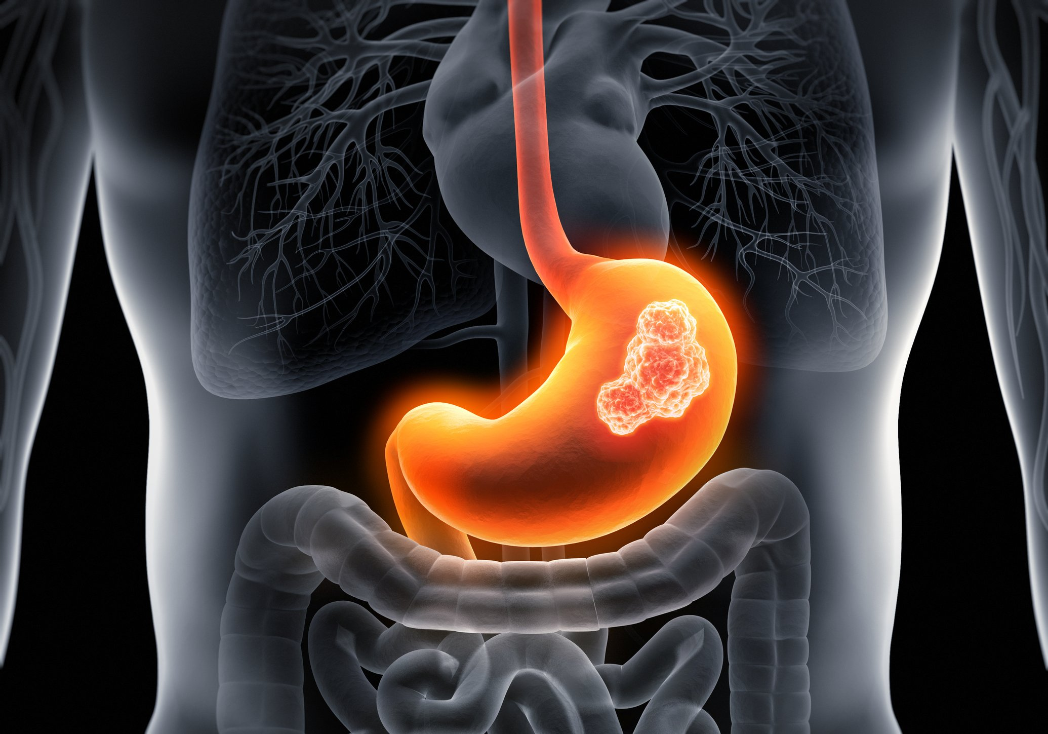 Study Gauges Specific Site Stomach Cancer Risks among Ethnic Groups