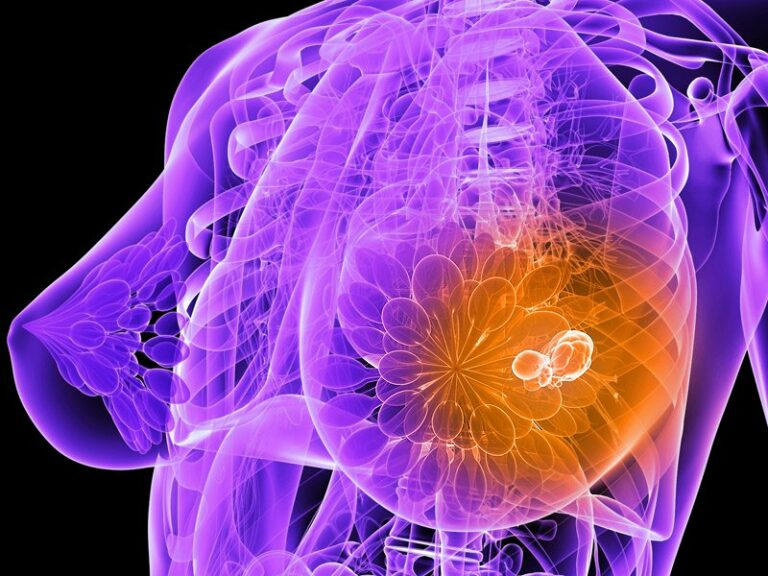 Synthetic Hormones Continue to Increase Breast Cancer and Death Rates Nearly 20 Years Later