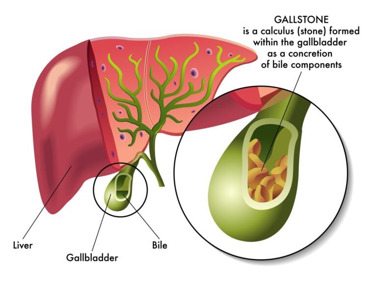 No Gallbladder: Strategies to Improve Digestive Health after Surgery
