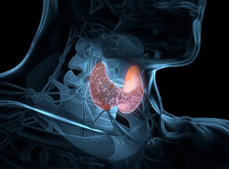 How Hypothyroidism Affects the Entire Body
