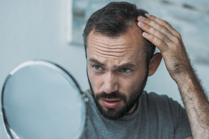 Getting to the Root of Male and Female Hair Loss: A Functional Medicine Approach