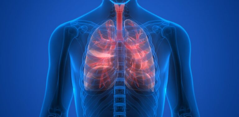 4 Natural Treatments for Cystic Fibrosis