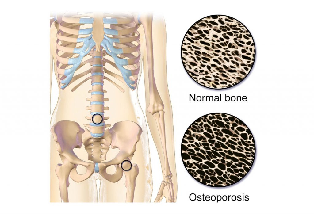 Natural Treatment Remedies for Osteoporosis
