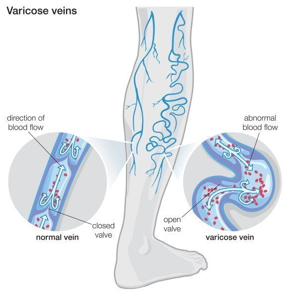 Natural Treatment Remedies for Varicose Veins